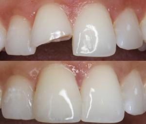 Dental & Teeth Bonding Melbourne