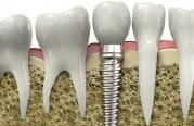 melbourne florida dental implants
