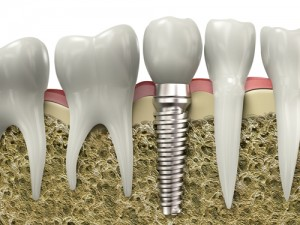 Best Dental Implants in Melbourne Florida