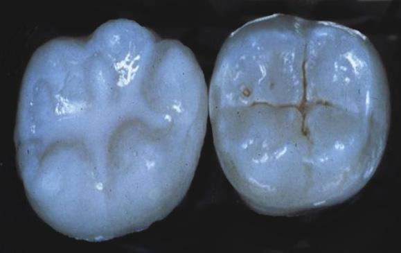 Dental Sealants Dentist In Melbourne Florida Artistic