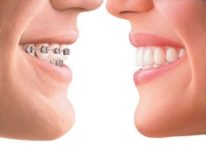 Melbourne Florida invisalign