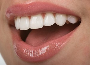 Melbourne Florida porcelain veneers