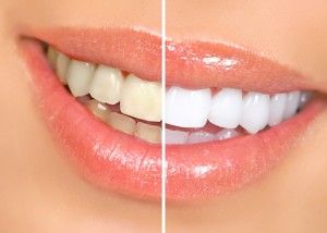 Melbourne Florida teeth whitening