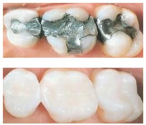 white fillings versus amalgam fillings